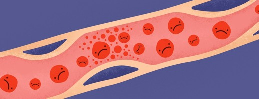 Bladder Cancer and Blood Clots (Thromboembolism) image