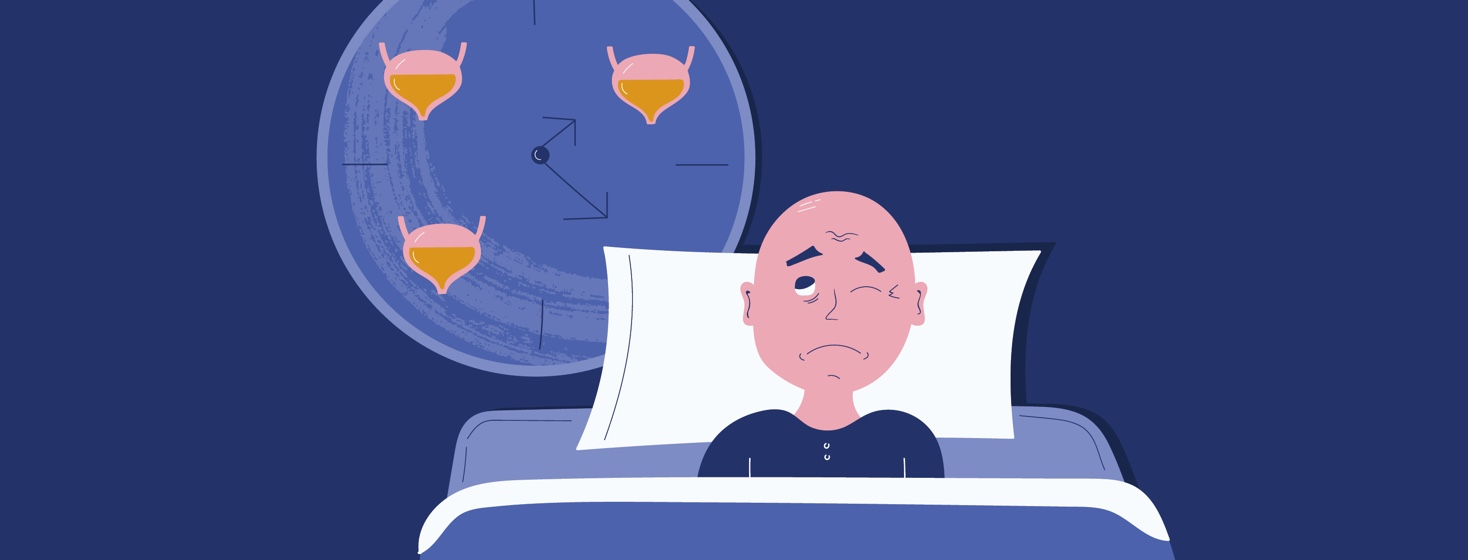 A man in bed with one eye closed and the other eye open looking at a clock with full bladders all around in