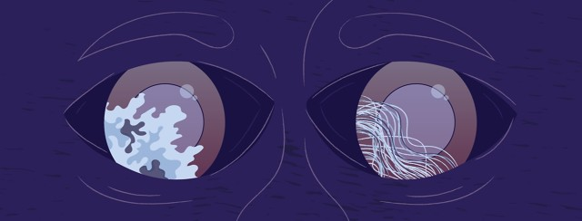 a pair of eyes with a reflection of two types of tumors in each of the eyes
