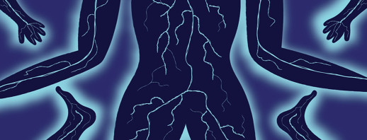 Neuropathic Pain and Bladder Cancer image