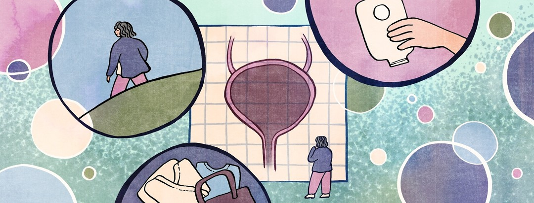 A woman stands in front of a bladder diagram, surrounded by bubbles framing advice for surgery preparation.