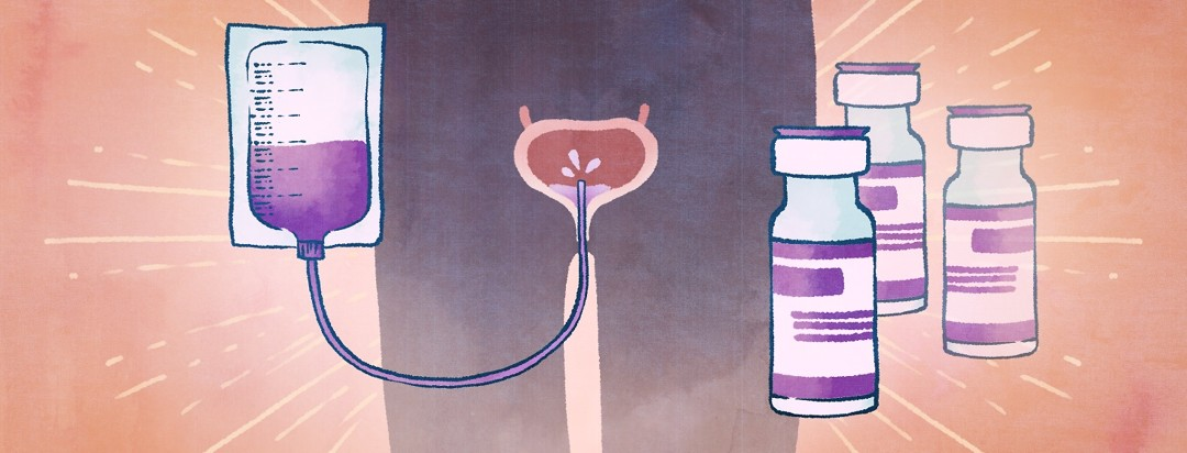 A diagram of BCG treatment being applied to a bladder via catheter next to bottles of BCG.